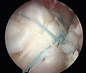 Rotator Cuff After treatment