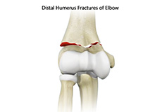 Distal Humerus Fractures of the Elbow